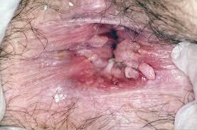 std-clamydia anus