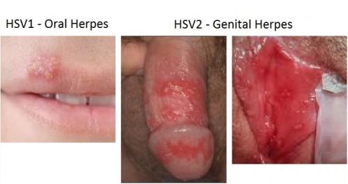 std-herpes